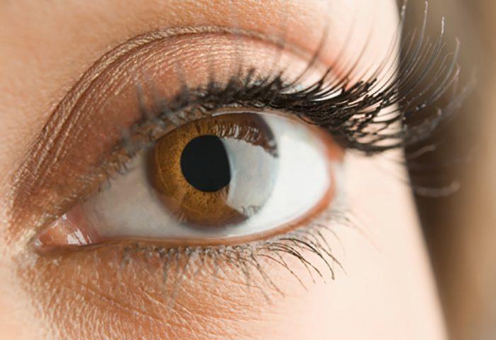 Transplante de córnea muda a cor dos olhos?
