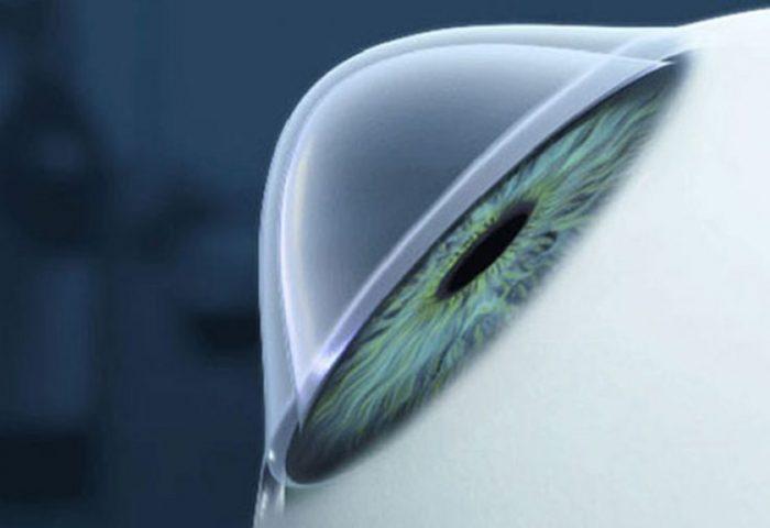 Como evitar o ceratocone? A doença tem prevenção?
