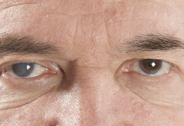 Lentes intraoculares na Cirurgia de Catarata