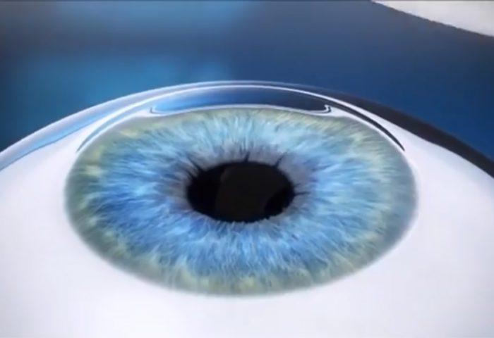 O que você deve saber sobre a Cirurgia Refrativa a Laser