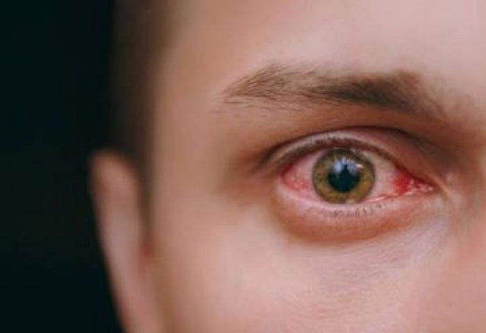 O que são oclusões venosas da retina?