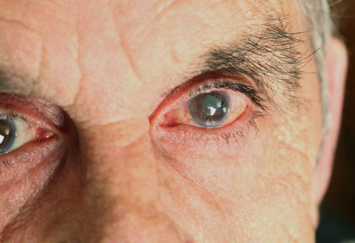Dia Mundial de Combate ao Glaucoma