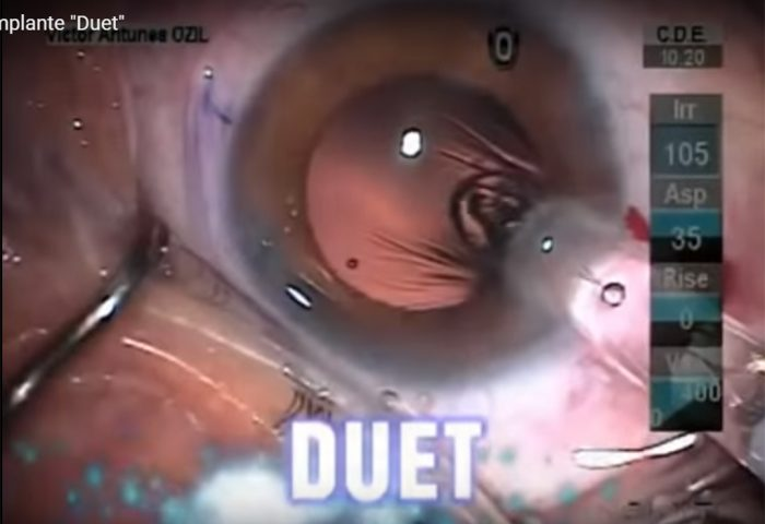 Vídeo: Cirurgia de Implante Multifocal M-Duet