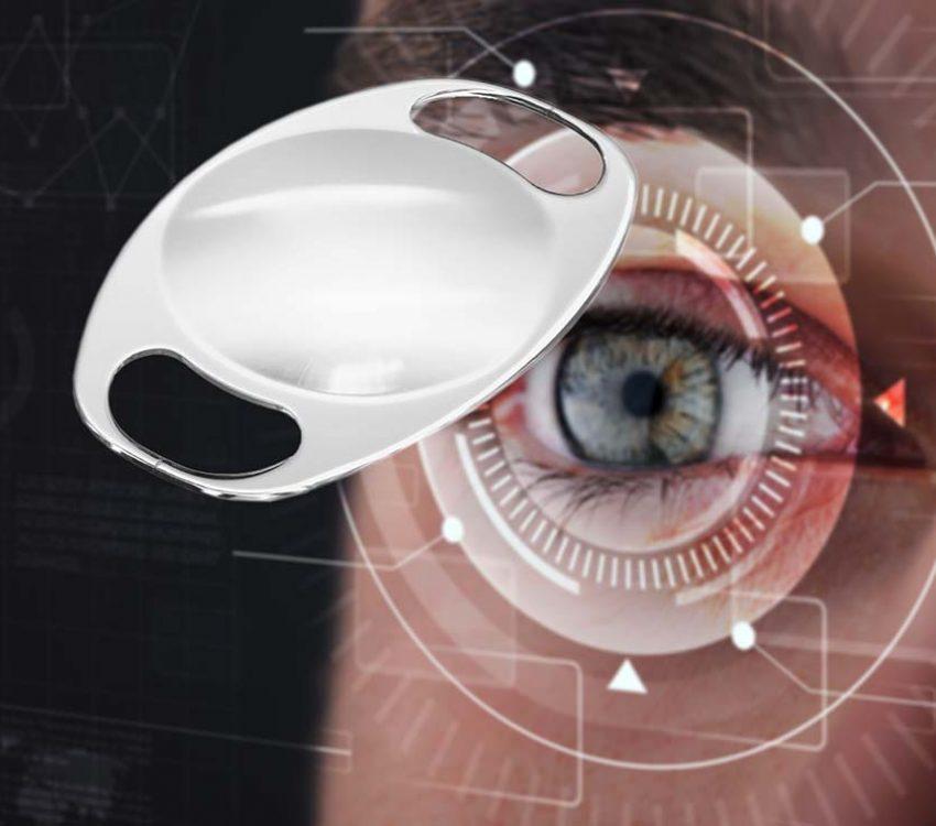 Implante de Lentes Intraoculares Artisan e Artiflex