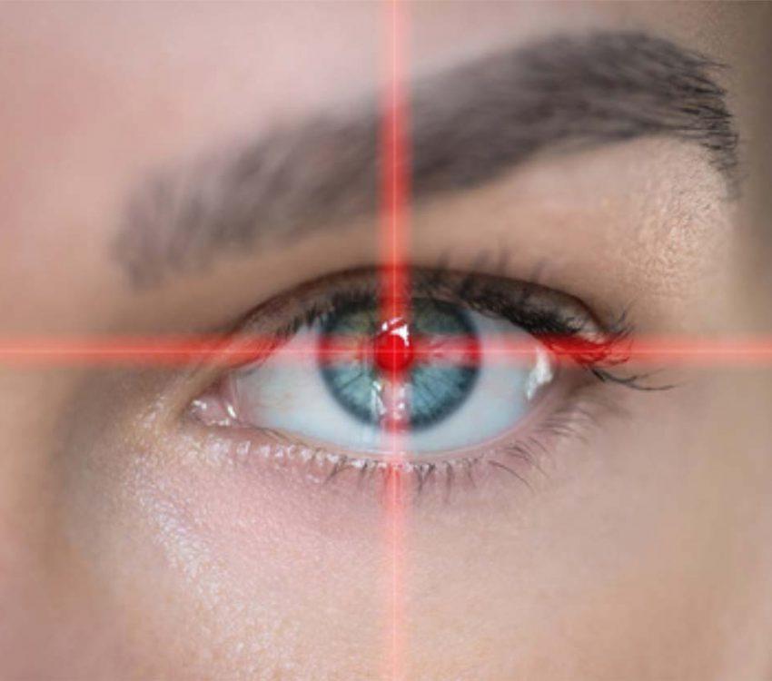 Cirurgia de Miopia, Hipermetropia e Astigmatismo