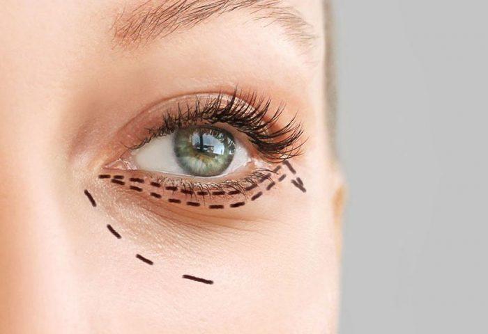 Você sabe o que é Oculoplástica?