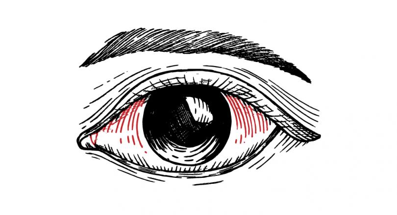 """Hemorragia subconjuntival, conhecida como """"derrame nos olhos"""", um problema que assusta!"""